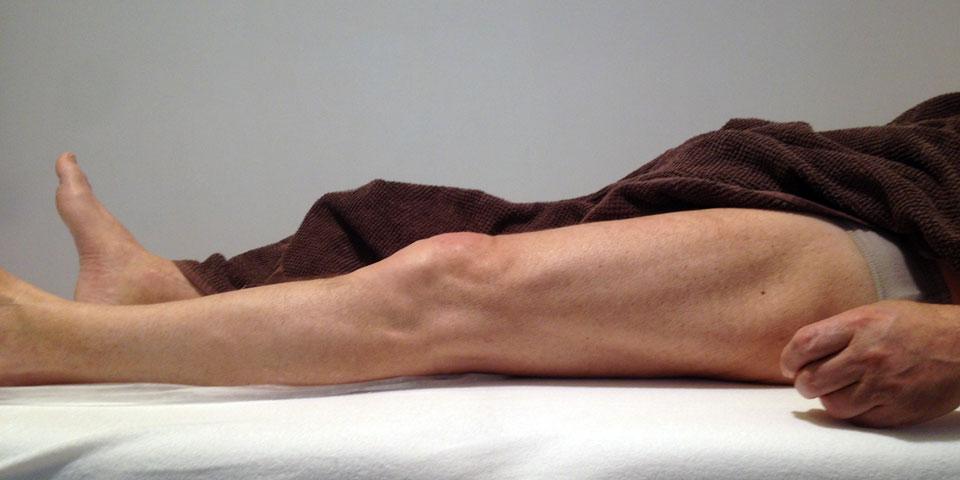 zlom-ledvenega-vretenca2