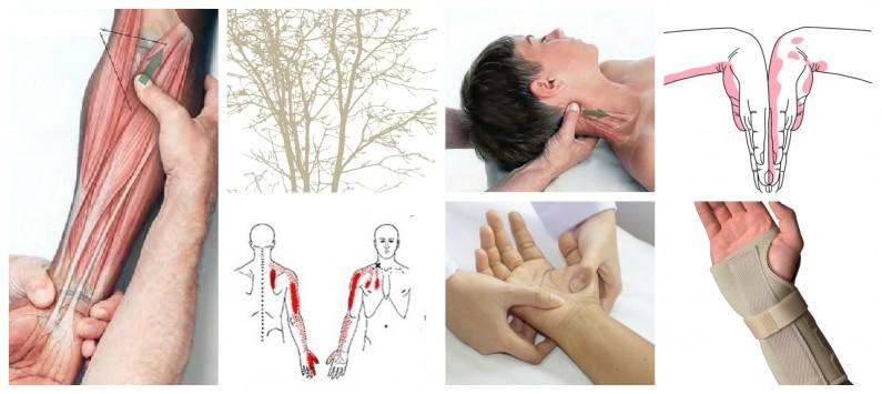 sindromkarpalnega kanala