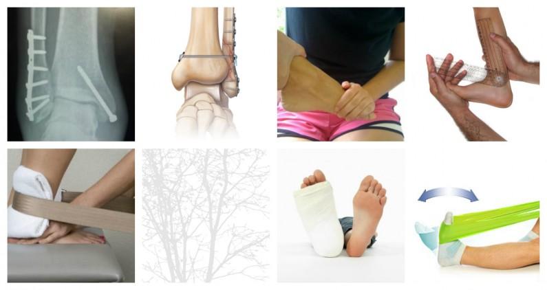 zlom gležnja fizioterapija grosuplje