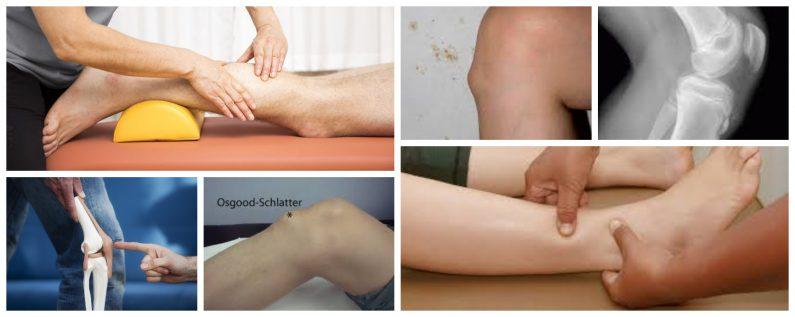osgood schlater - Fizioterapija Grosuplje d.o.o.